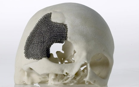 Metal 3D Printing for Medical Implants